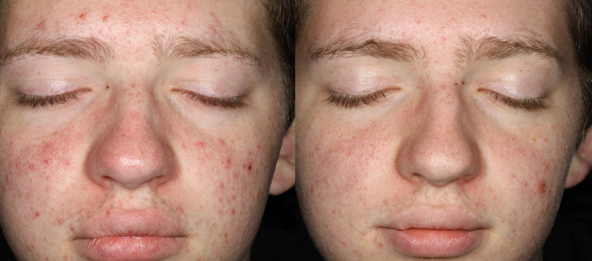 Reduction of breakouts