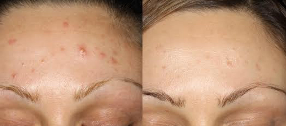 Reduction in pimple size
