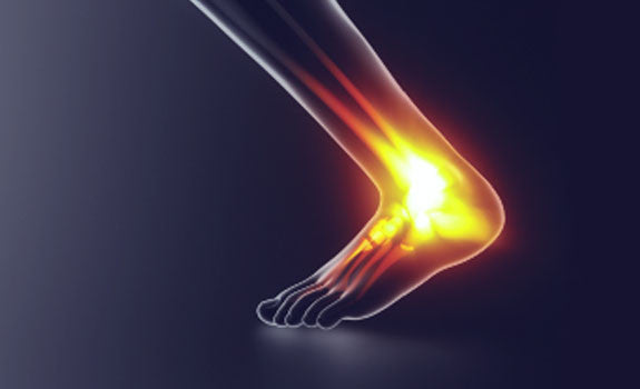 Achilles Tendinopathy - Identification and Management