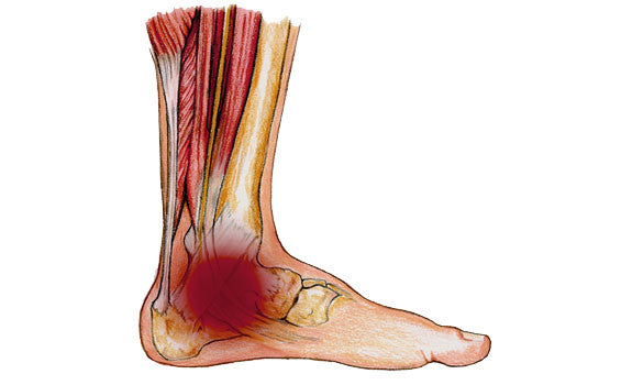 Tibialis Posterior Dysfunction Identification And Management Ppl