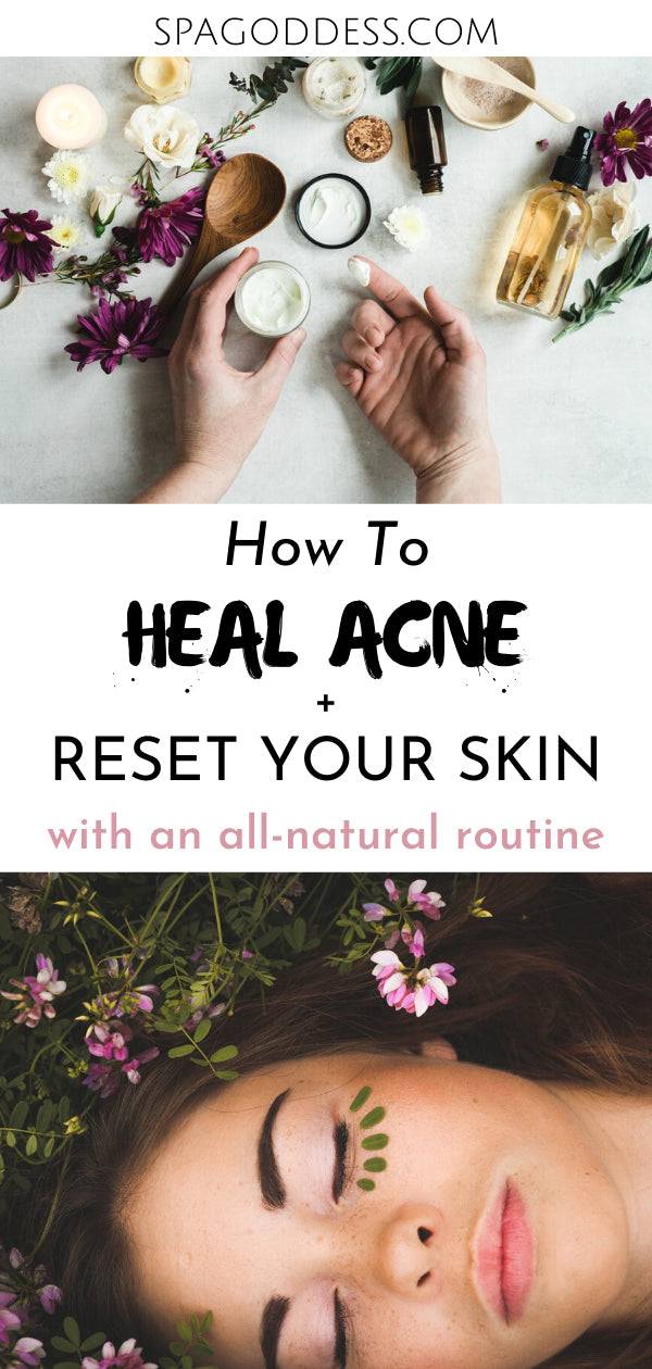 How to Reset Your Skin and Heal Acne Naturally