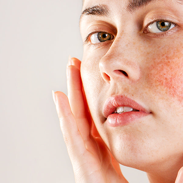How To Keep Redness Under Control