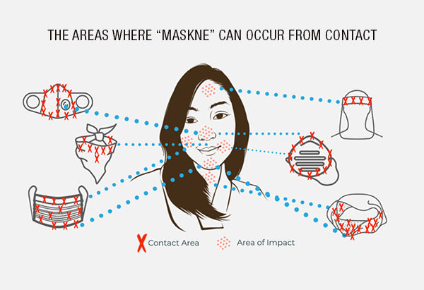 treat and prevent maskne breakouts