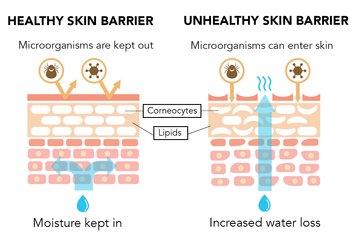 skin barrier performs two very important functions. First, it helps our skin retain moisture by preventing water loss from deeper skin layers. Second, it helps protect our skin from harsh elements like UV rays, pollutants, microbes, and chemicals.