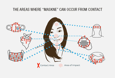 The areas where 'maskne' can occur from contact