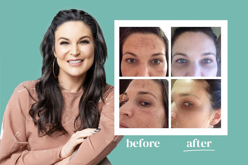 Before and after melasma and hyperpgimentation results of Urban Skin Rx® customer with revitalized skin