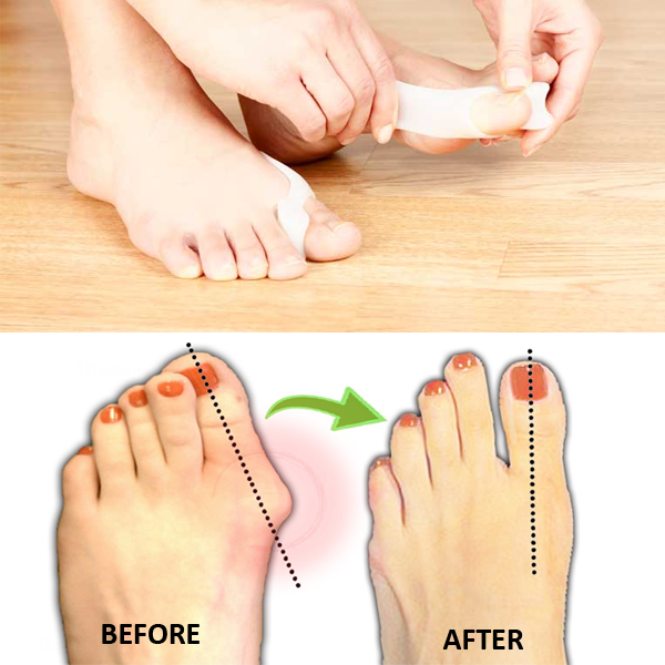 Stretchy Silicone Toe Separator Bunion Pads For Gentle Realignment