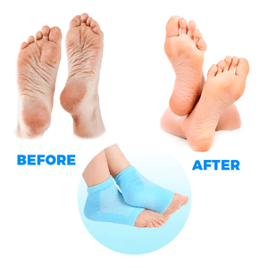 Toe-less Silicone Gel Heel Socks For Anti-Crack Foot Care And Heel Pain