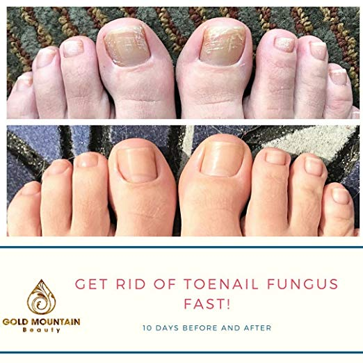 Fungal Nail Eliminator - Antifungal Toenail Oil – Gold Mountain Beauty