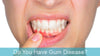 The Shocking Effects of Gum Disease and Your Health