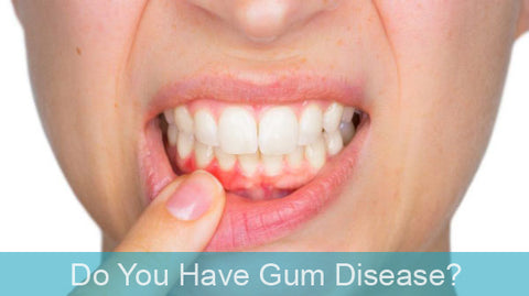 Do you have gum disease