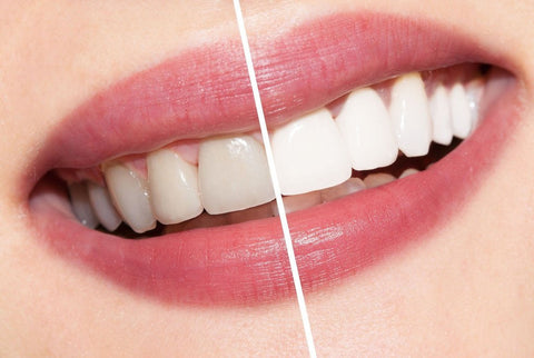 Before and after photo showing AP24 teeth whitening with no flouride