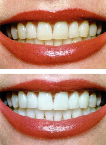 Before and After Photo Teeth Whitening Toothpaste