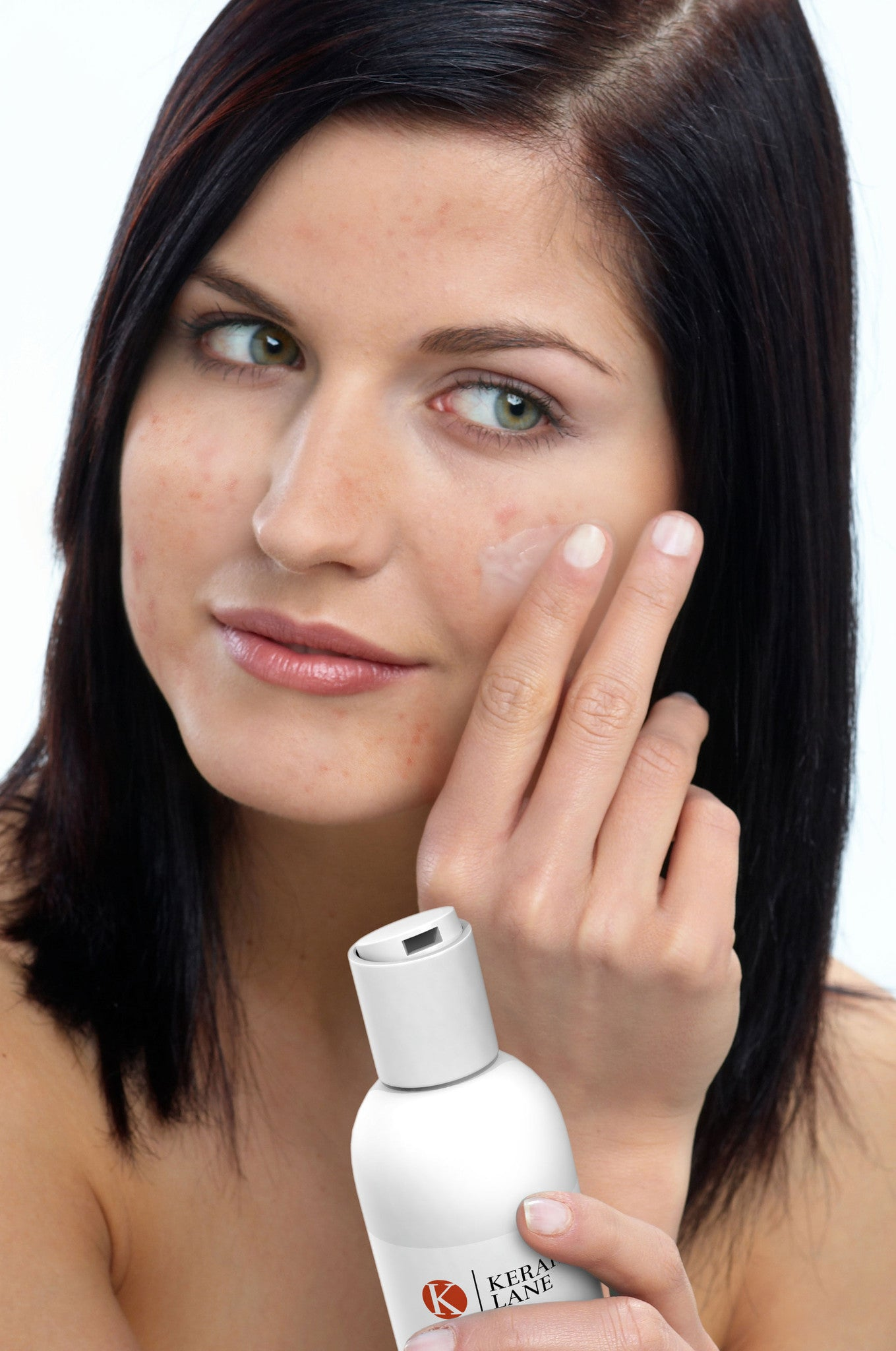 Acne Prevention and Solutions 101
