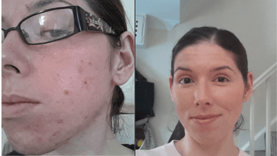 Before & After: Healing Acne and Other Skin Conditions with Peels