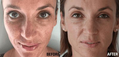 Before & After: How to Reverse Sun Damage and Pigmentation