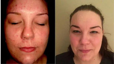 Before & After: The Gut-Complexion Connection: Healing Acne from the Inside Out