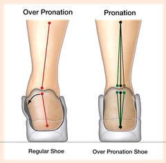 Overpronation Shoes: Are They Beneficial?