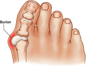 What is a Bunion (Hallux Valgus)