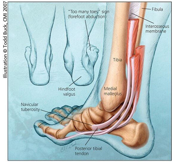 Tips for Avoiding Fallen arches   OrthoFeet
