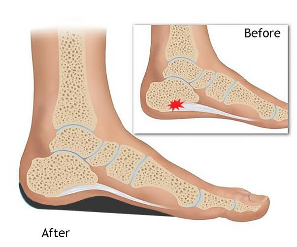 Premium Othotic Insoles Sandals