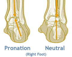 How Your Feet Affect Your Spine and Back Pain?
