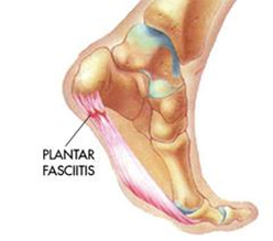 How Orthotic Insoles Can Help Plantar Fasciitis