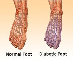 6356cce35c Diabetic Socks - What are they, and why are they needed?   OrthoFeet