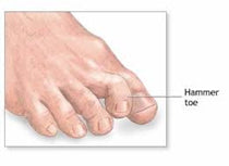 Hammertoes Symptoms and Treatment Shoes Footwear | Orthofeet