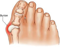 Alleviate Foot Pain and Discomfort Caused By Bunions