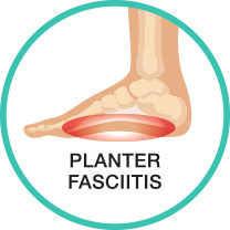 Plantar Fasciitis Pain Treatment or Relief Guide