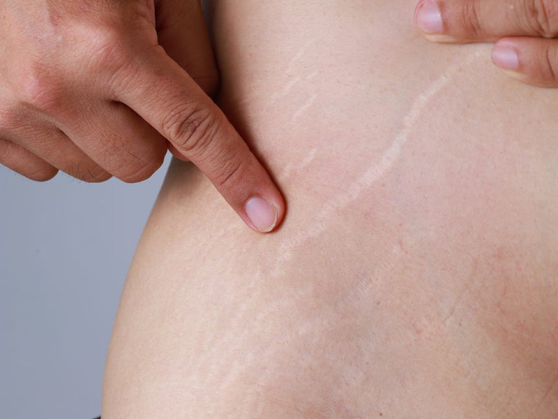 Stretch Marks: Why they appear and how to get rid of them?