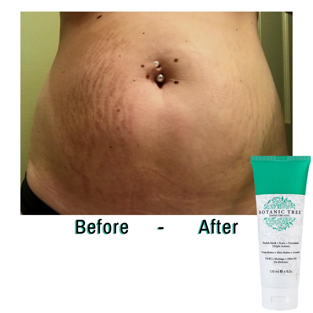 3X Triple Action Burner anti stretch mark, scars and prevention cream, works or your money back!!