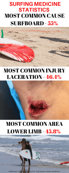 Surf Trauma Injury Statistics