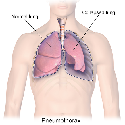 Surfer Pneumothorax