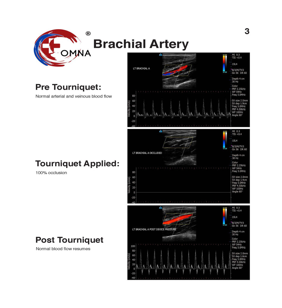 Tourniquet Surfboard Leash Study Results - Brachial Artery Occlusion