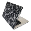 Black Lace Macbook Protective Case