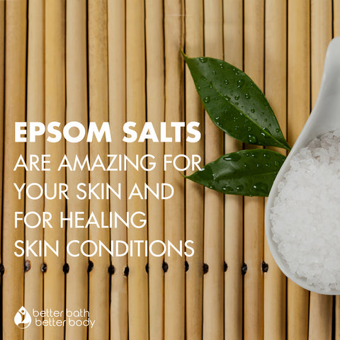 epson salts are amazing