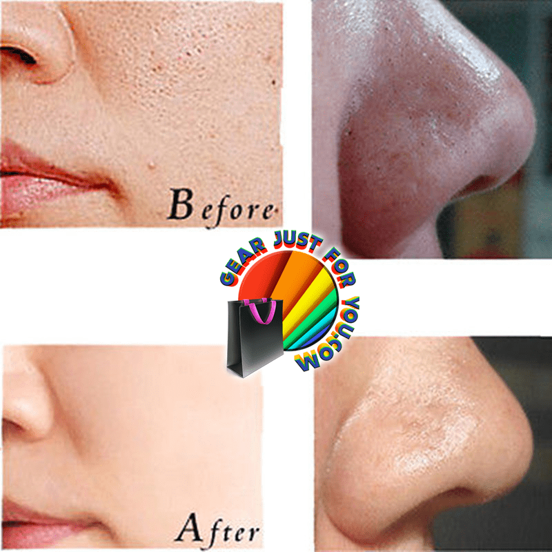Amazing Blackhead Removal Deep Cleaning Face Mask It's ... - photo#13