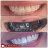 Image of Totally Works Whitening BAMBOO CHARCOAL TEETH WHITENER TOOTHPASTE - ALL NATURAL - Gear Just For You.com