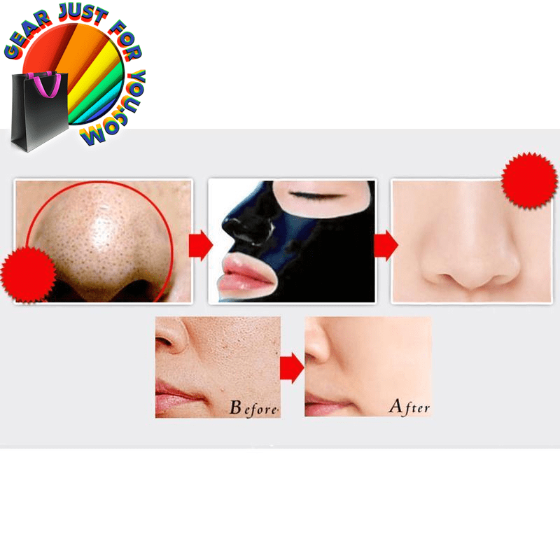 Amazing Blackhead Removal Deep Cleaning Face Mask It's ... - photo#48