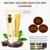 ULTIMATE ACNE Skin Solution Volcanic Mud Deep-Cleansing Pore Facial Foam