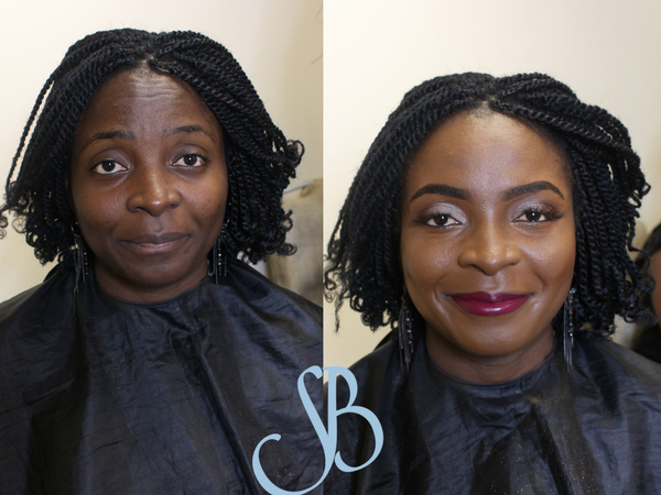 before and after client 7