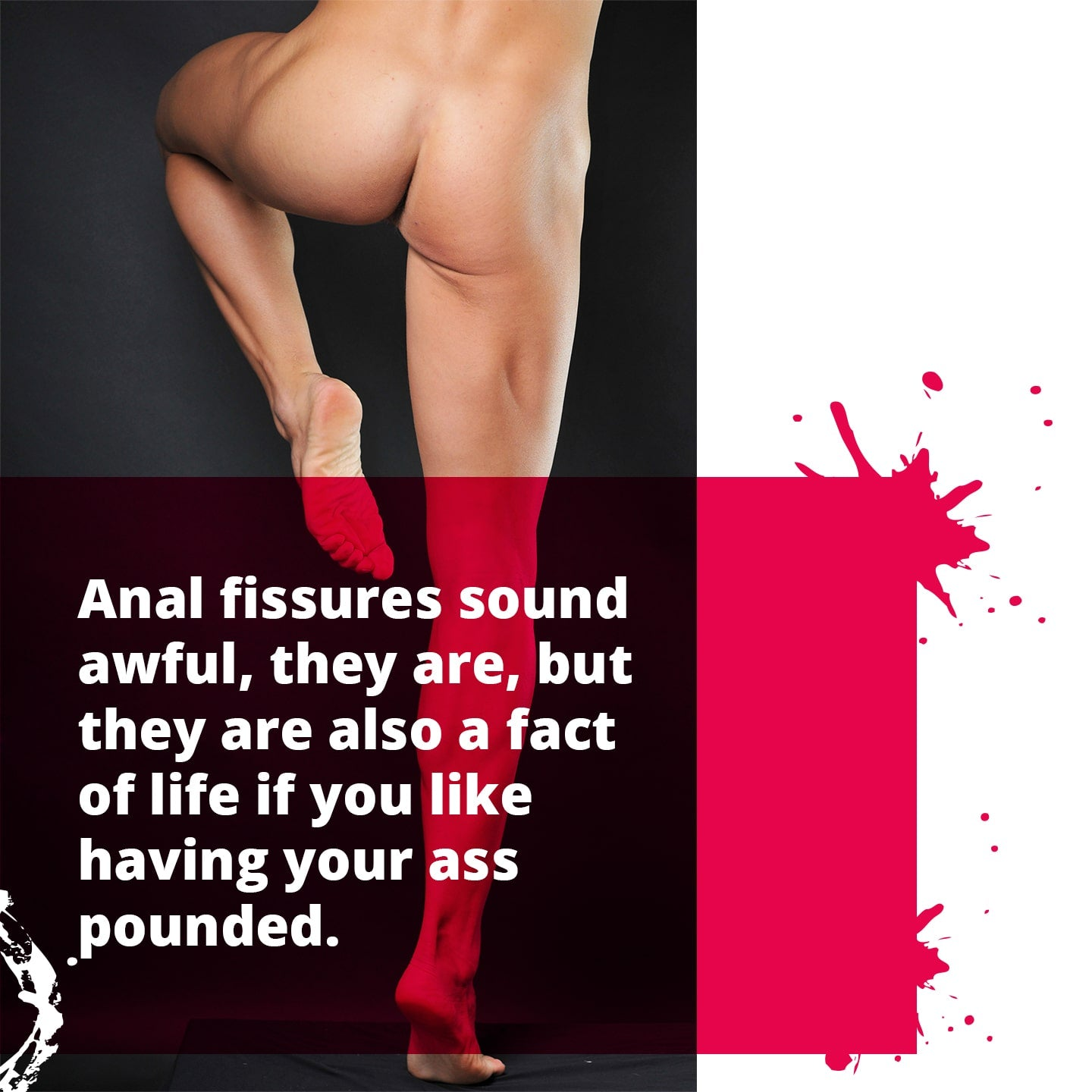 Bottoms Tips with Anal Fissures