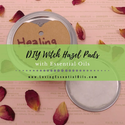 Witch Hazel Pads For Acne and Natural Healing
