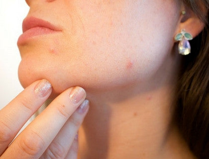 8 Effective Natural Acne Remedies to Try Now