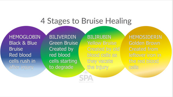 The four stages of bruises, and bruise healing