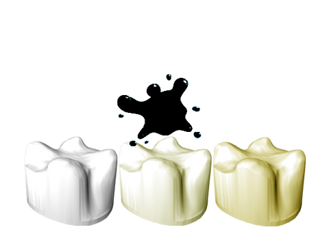 CeraCrowns  (impression copings made of zirconia)