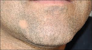Is Your Beard Going Bald?