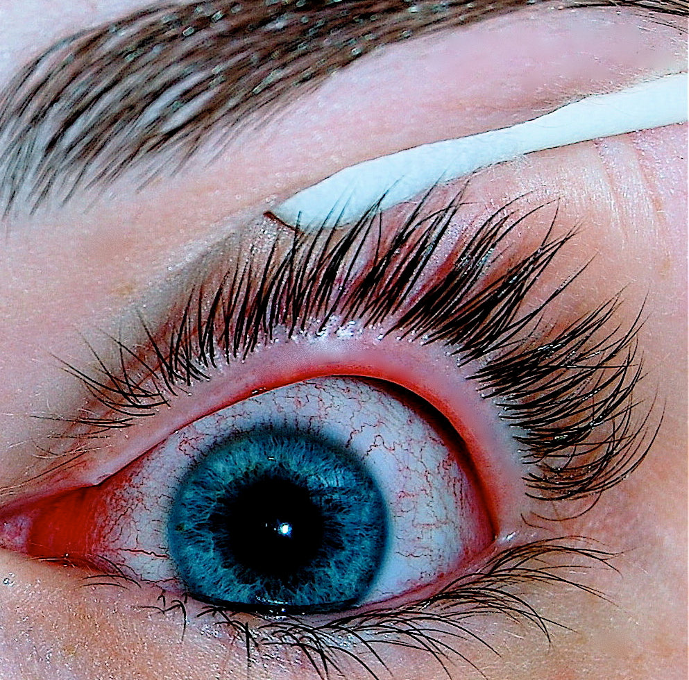Eye Infections and Blepharitis